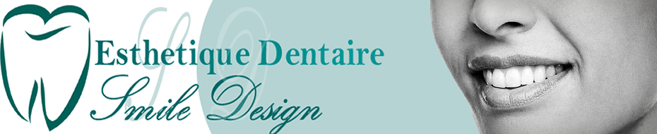 Esthétique Dentaire & Smile Design : Blanchiment Dentaire